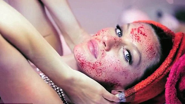 """Image result for vampire facial"""""""